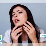 جلوگیری از خشکی پوست با لوبیا چیتی